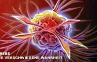 Morgellons und Transhumanismus