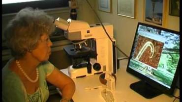 Morgellons in Deutschland – Parasiten im Blut