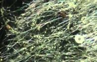 SCHLUNZ-Chemtrail-Fallout unter dem Mikroskop